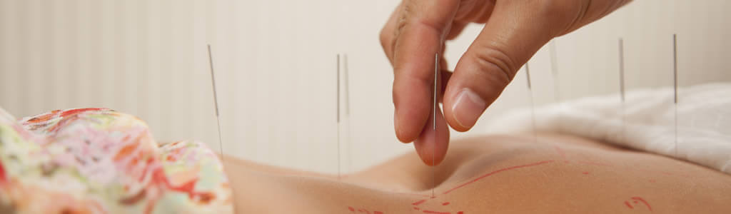 Is Acupuncture Effective for IVF Site