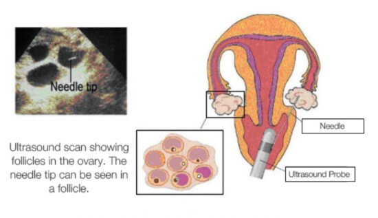 Image of ultrasound scan showing follicles in the ovary and location of needle for the procedure used in IVF clinics