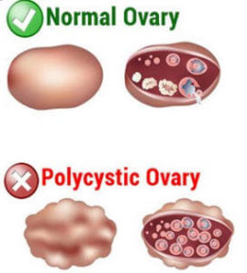 image of normal ovary and a polycystic ovary pcos know the signs